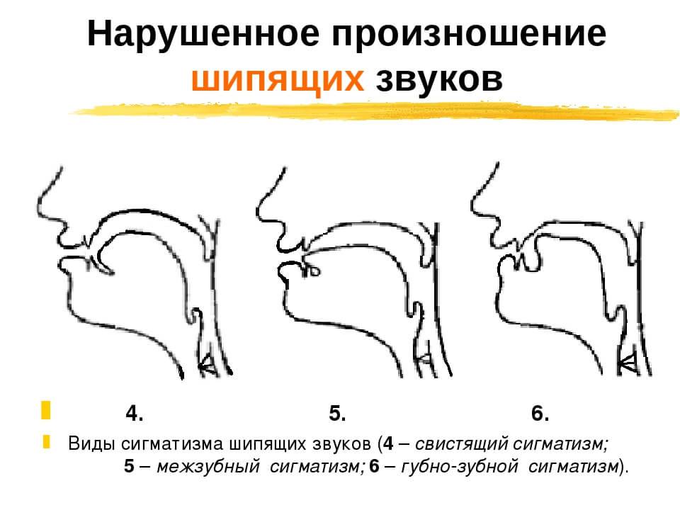 Нарушенное произношения шипящих №2