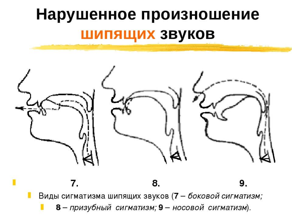 Нарушение артикуляции шипящих №3